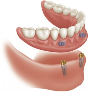 implants-dentures